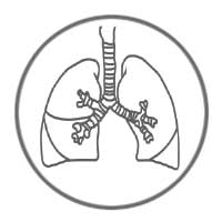 ZytoDot Probes - Lung Cancer