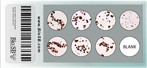 7-Core HPV Cervical Cancer Cell Line Microarray MAIN