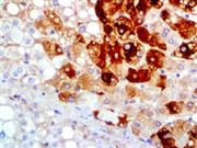 Hepatitis B Virus Surface Antigen (A10F1), MMab THUMBNAIL