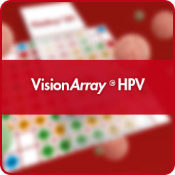 visionarray, hpv chip, high rish hpv, hpv pcr detection