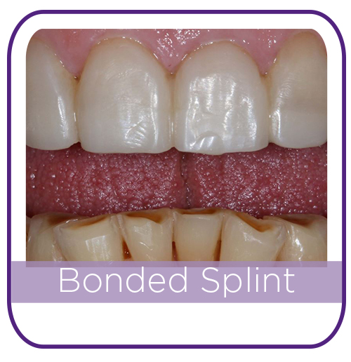 Bonded splint MAIN