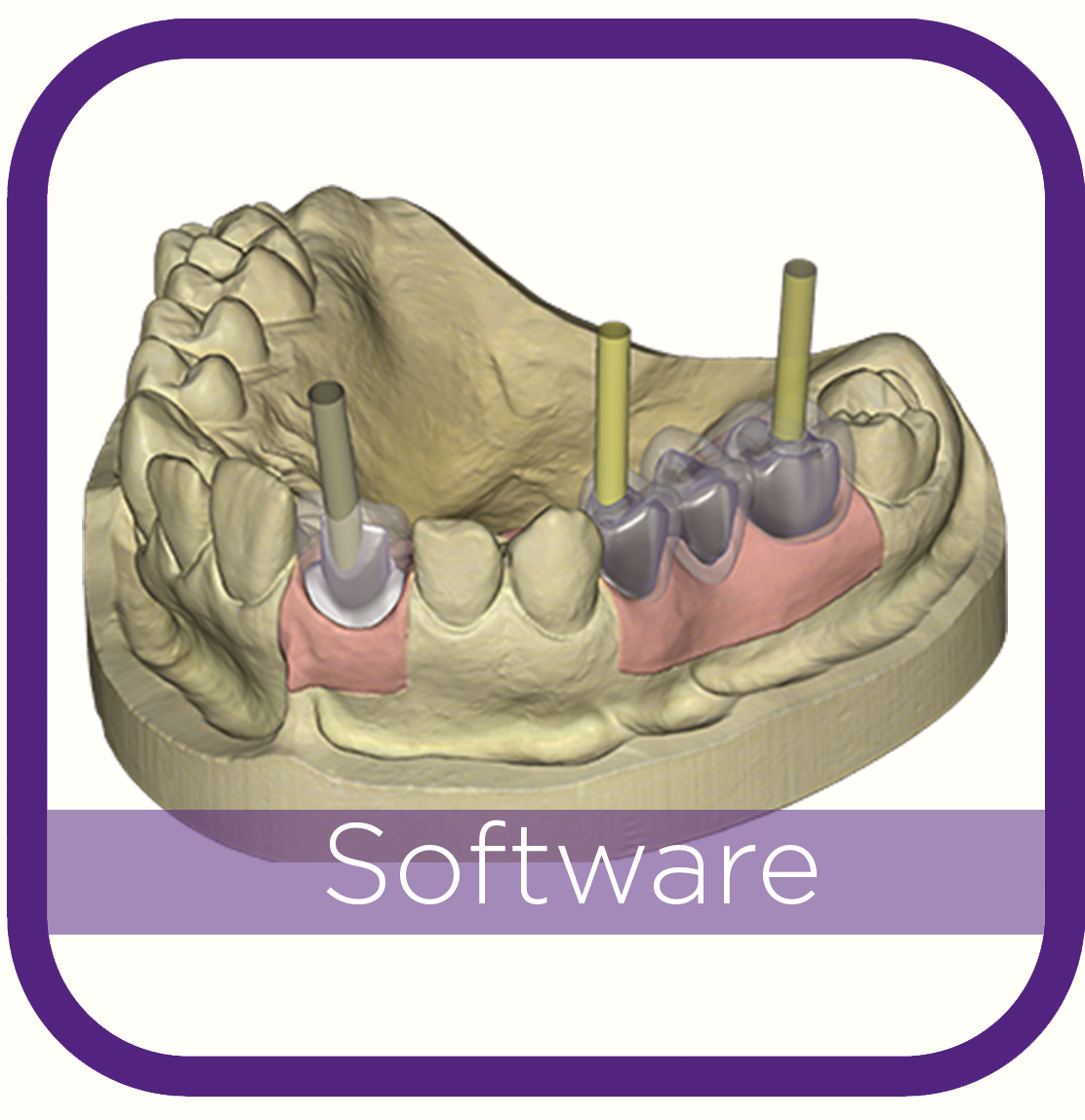 Exocad Dental Software