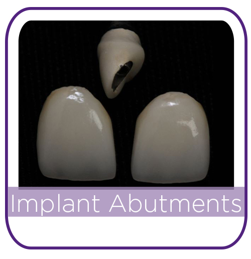 Implant Abutment Alternatives MAIN