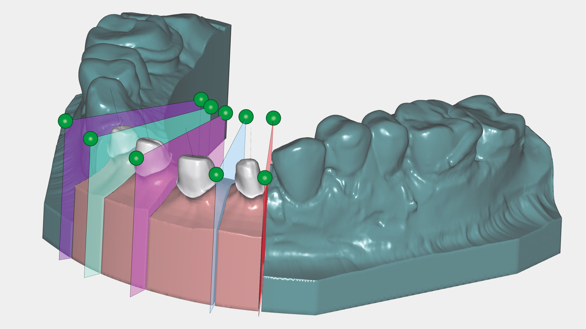 Ceramill Mind Modell-Software