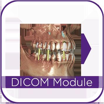 DentalCAD by exocad dental software lab software dental software by