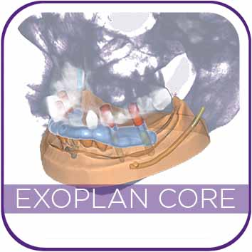 EXOPLAN CORE VERSION (DESIGN ONLY) MAIN