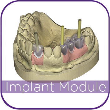 Exocad Implant Module MAIN