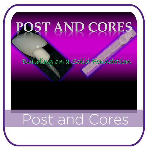 Post and Core MAIN