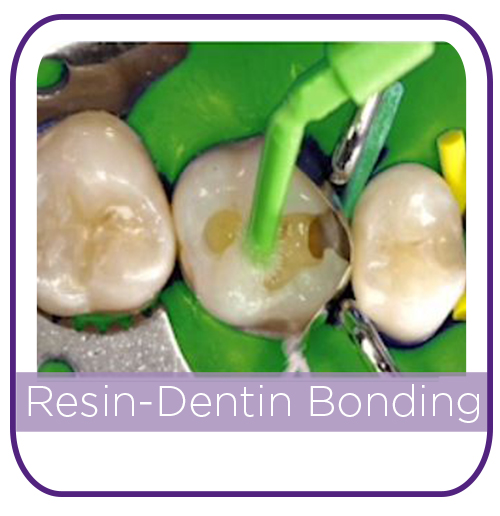 Resin Dentin Bonding MAIN