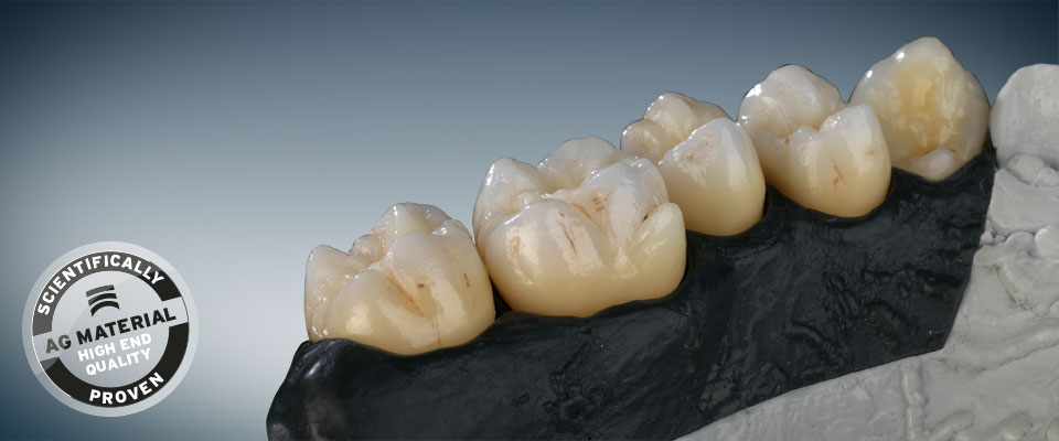 Ceramill Zolid 71 Esthetic Professionals Distribution
