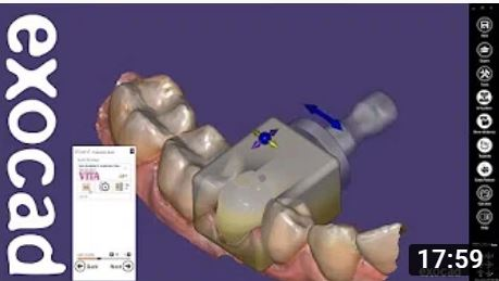 Single Visit Dentistry        (Chairside CAD)