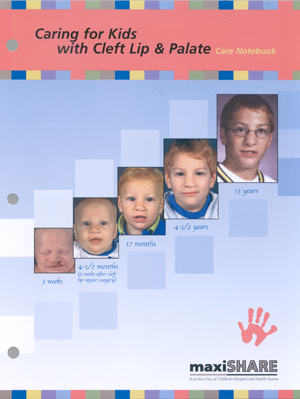 Caring for Kids with Cleft Lip and Palate (150001)
