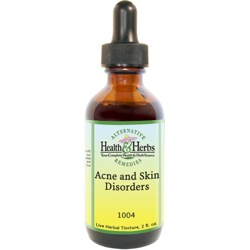 Acne and Skin Disorders Liquid Herbal Formula|Tinctures-Liquid Herbal Extracts & Benefits LARGE